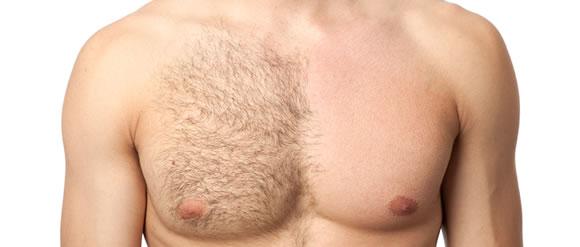 depilácia-muž